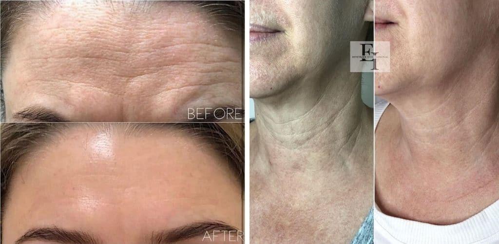 Fibroblast Skin Tightening Benefits