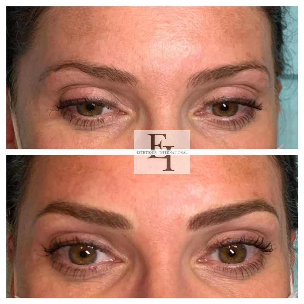 Nanoblading for eyebrows fills in thin eyebrows for a thicker appearance.